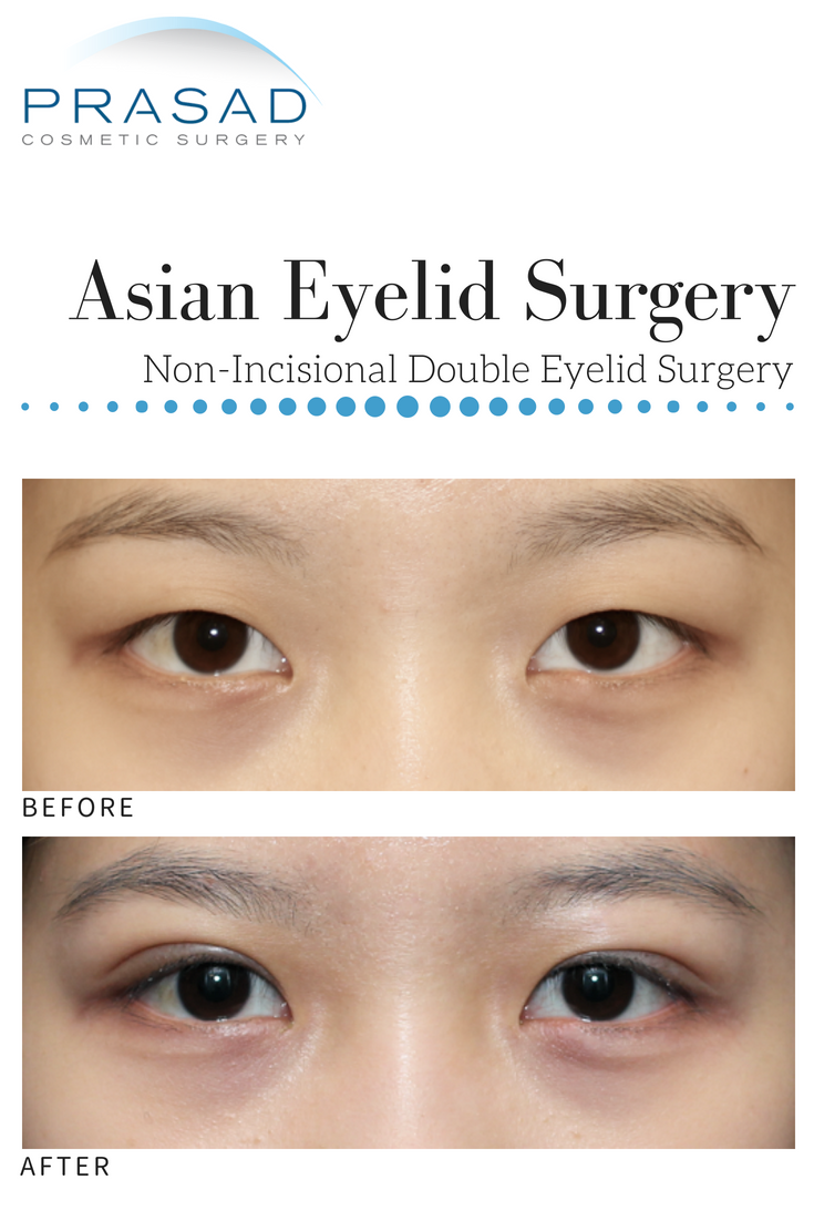 Asian Eyelid Surgery – Double eyelid surgery | Bucket list | Eyelid