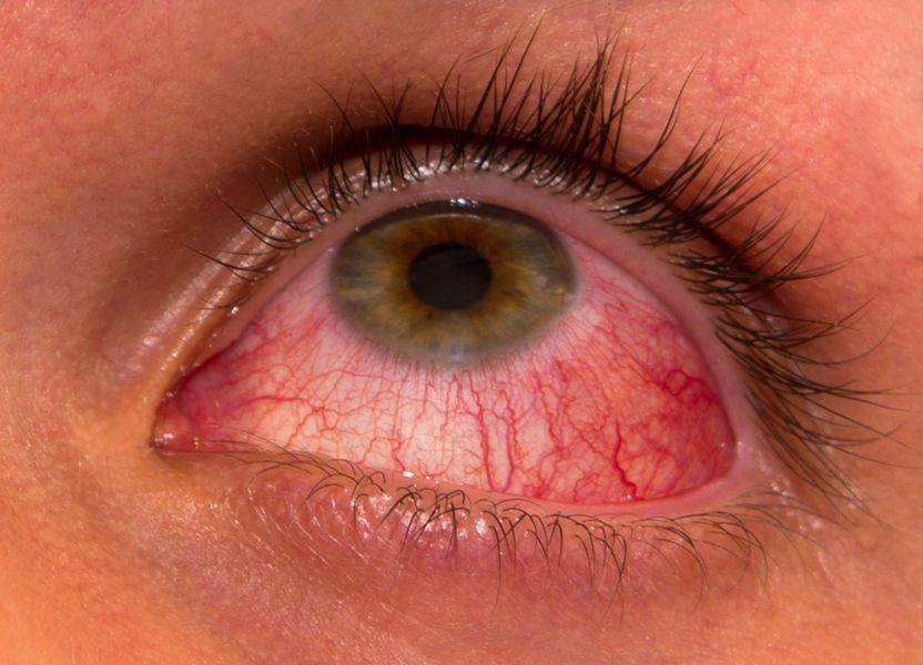 Relieve Itchy Eyes And Hay Fever Misery Suzy Cohen Suggests Ways To Heal Naturally Without Medication Home Remedies For Pink Eye Pink Eyes Treating Pink Eye