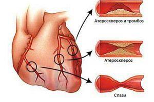 medicina varicelor