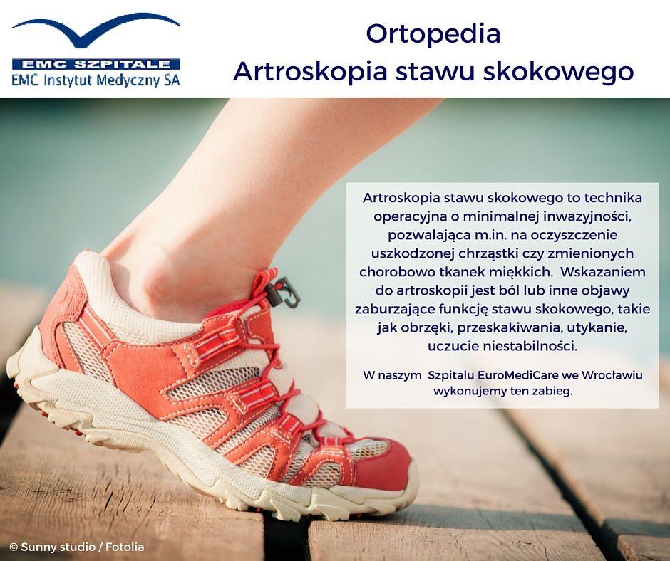 Czy Wiecie Czym Jest Artroskopia Stawu Skokowego I Jakie Sa Do Niej Wskazania Asics Sneaker Shoes Asics