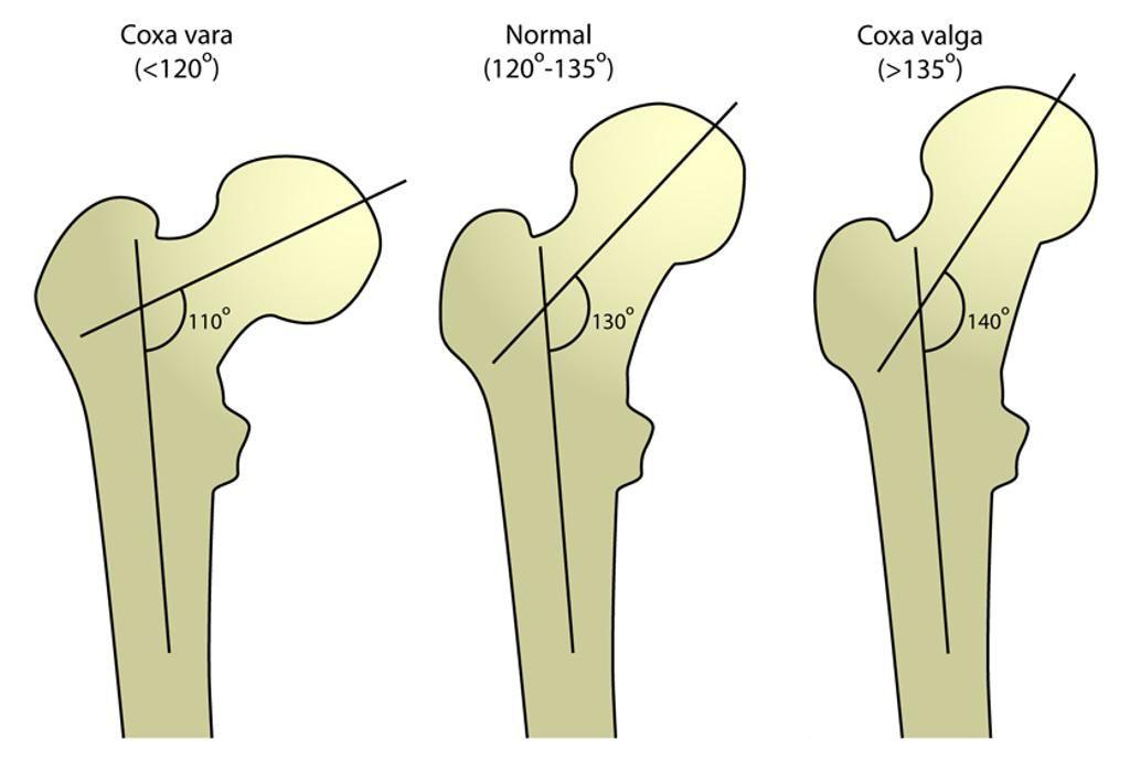 1c4b46dcf4f5fdcd8883d2842f7a51a8 - Medidas Ortopédicas