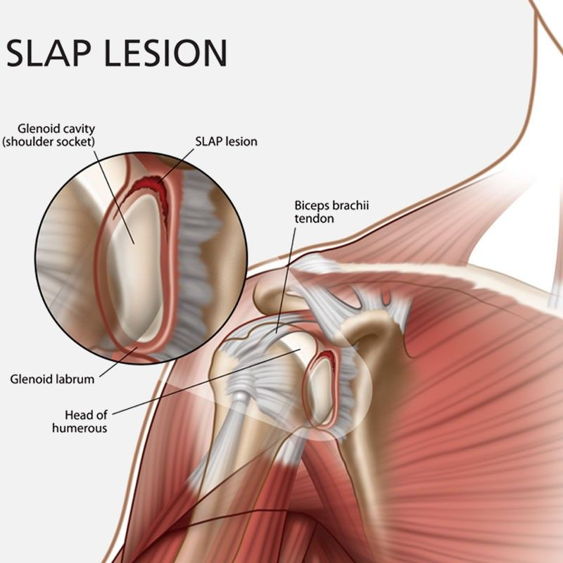 Arthroscopic Labrum Repair of the Shoulder (SLAP) and return to ...