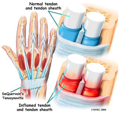 Wrist Tendinitis Singapore Orthopaedic Surgeon Official Website