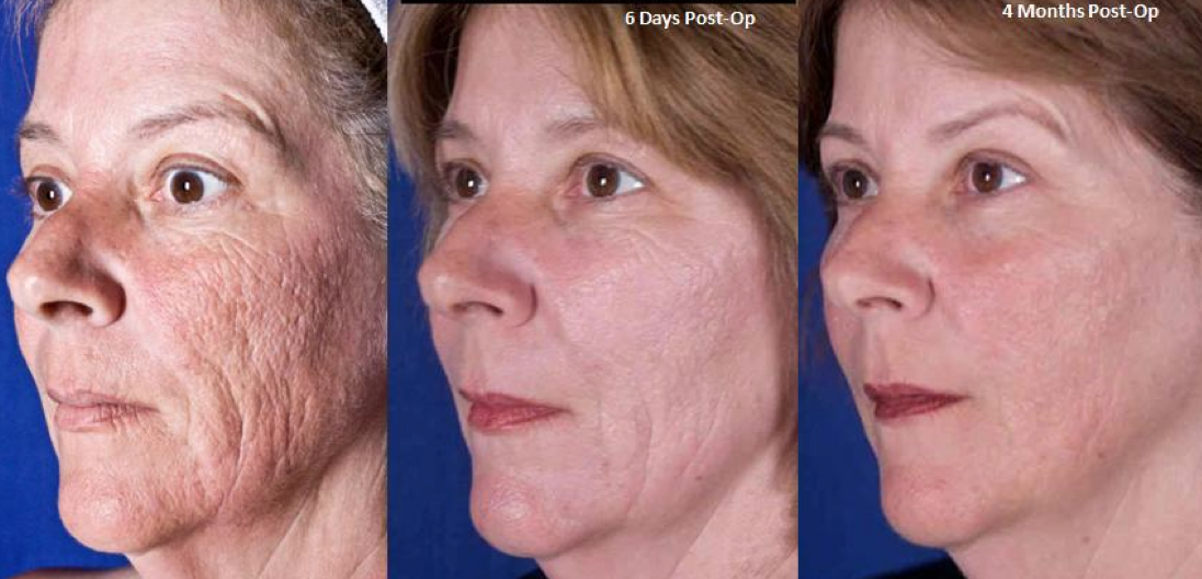 Doubtful. Facial resurfacing before and after remarkable