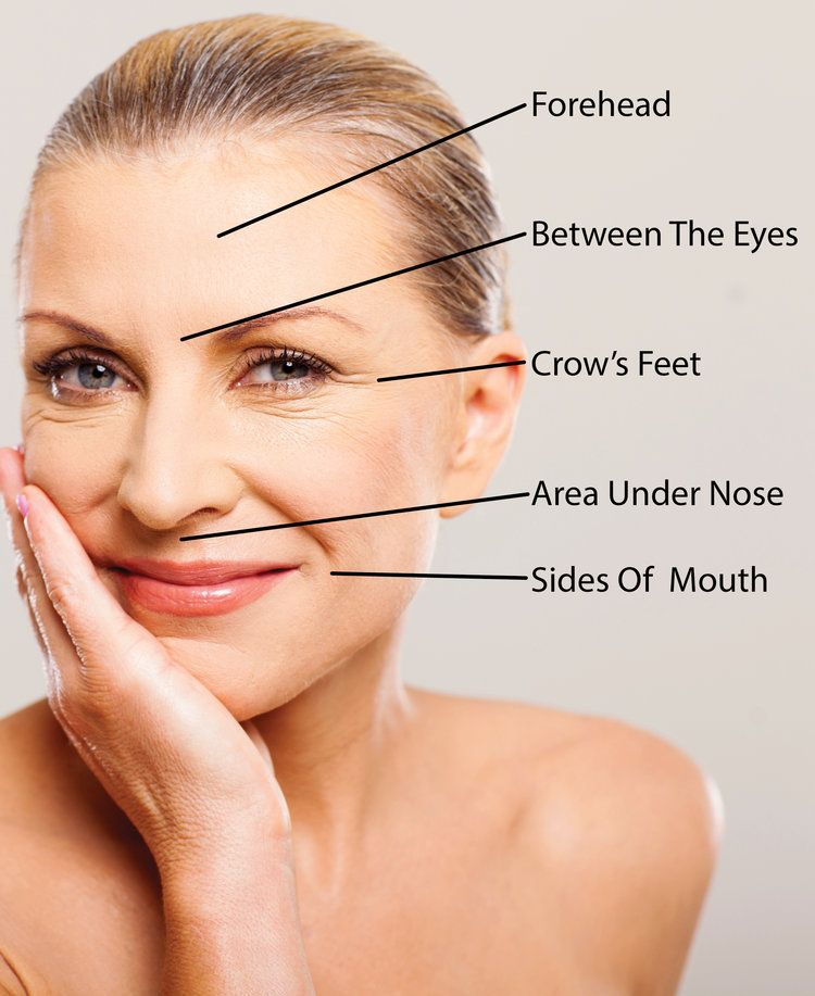 How Much Does Botox Cost Our Price Estimating Guide For Common Areas Treated By Botox Botox Cost Botox Forehead Botox Injections