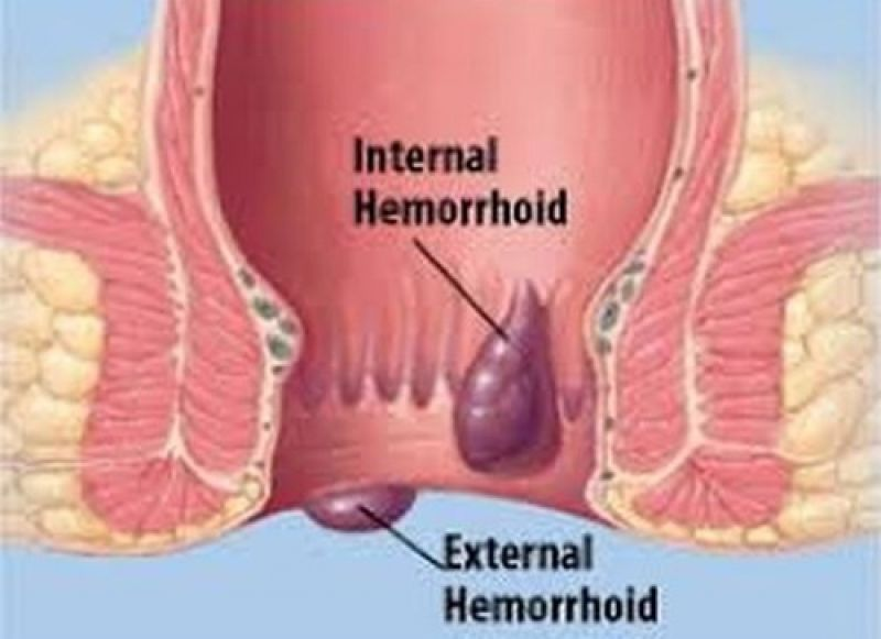 Inguinal Hernia: Sebepler, Belirtiler, Tedavi Nedenleri