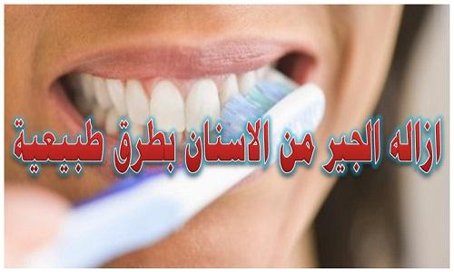 كيفية إزالة الجير من الأسنان بطرق طبيعية طرق ازالة الجير وتبييض الاسنان من أجل صحتك