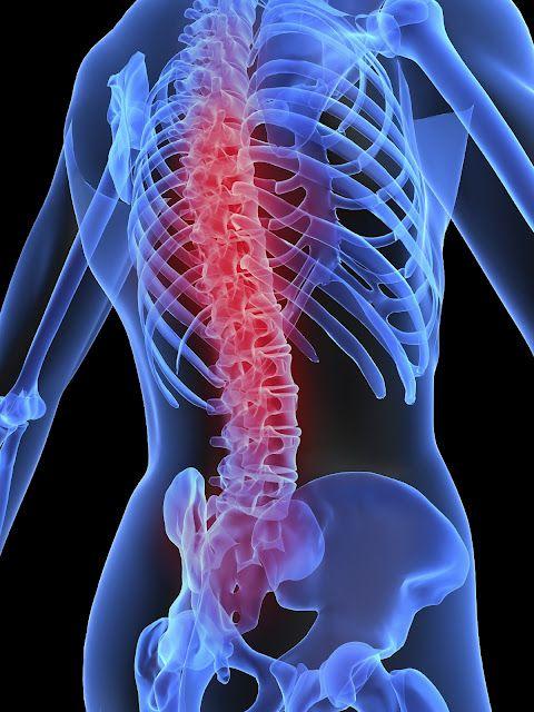 tratamientos para bajar de peso con laser spine