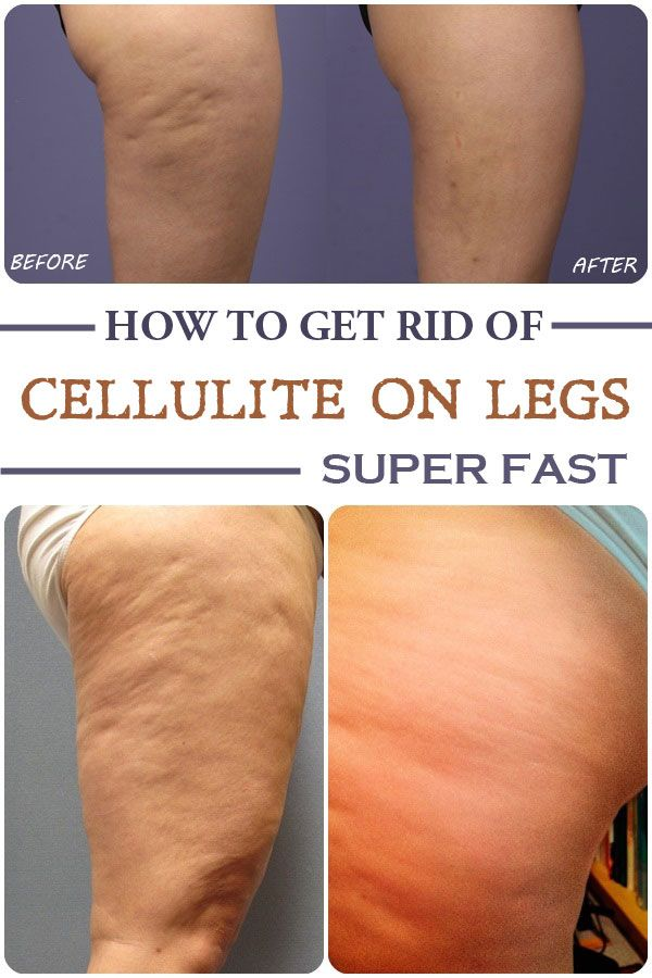 How to get rid of cellulite on legs super fast | Cellulite, Legs and ...