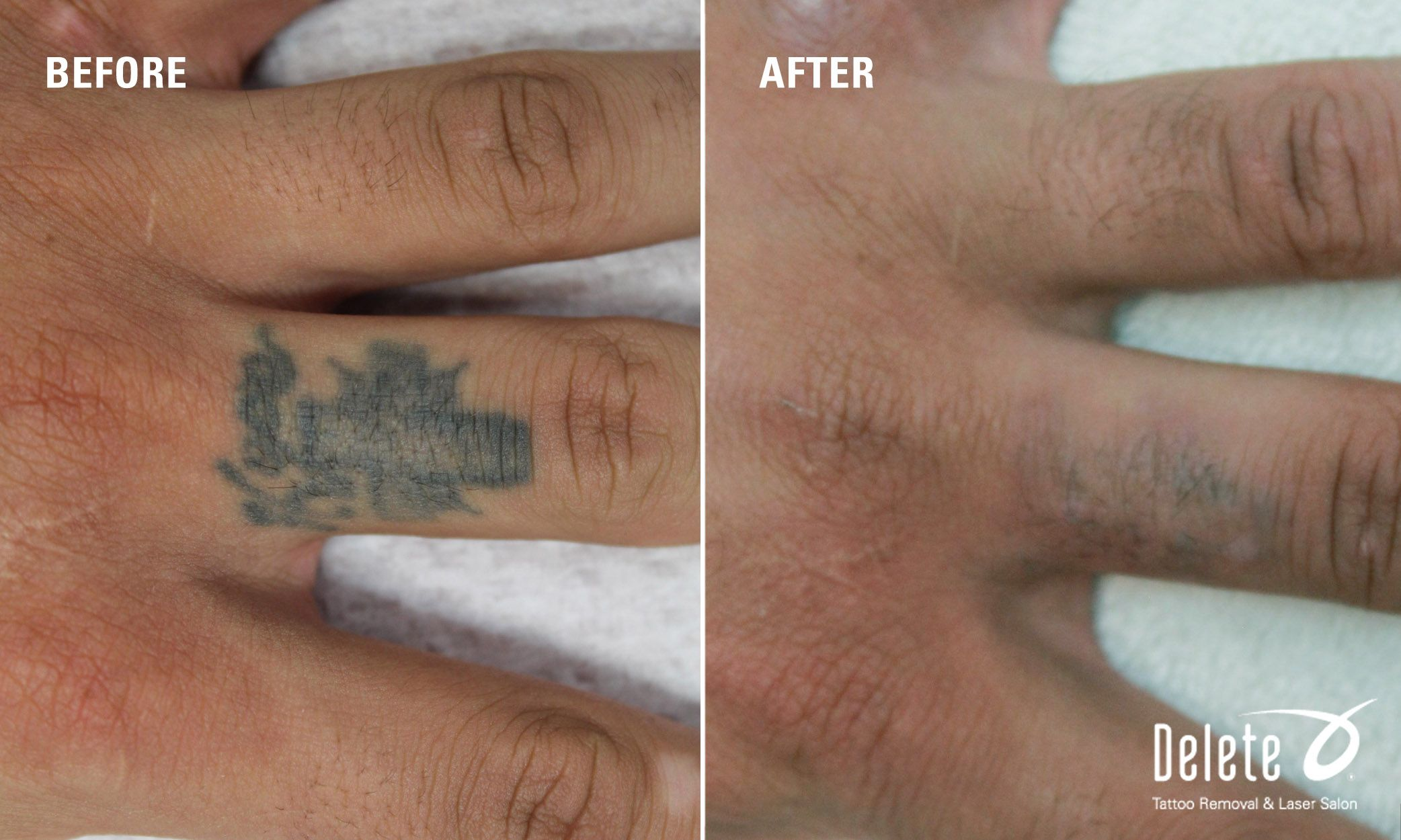 "Here is this week's ""Before & After"" PicoWay laser tattoo"