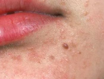 Warts On The Face