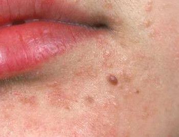 helminth este un medicament pentru multe persoane