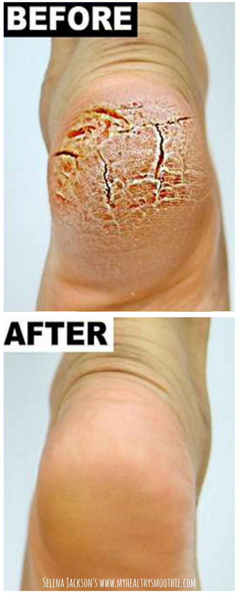 Pin On Beauty Tips And Hacks
