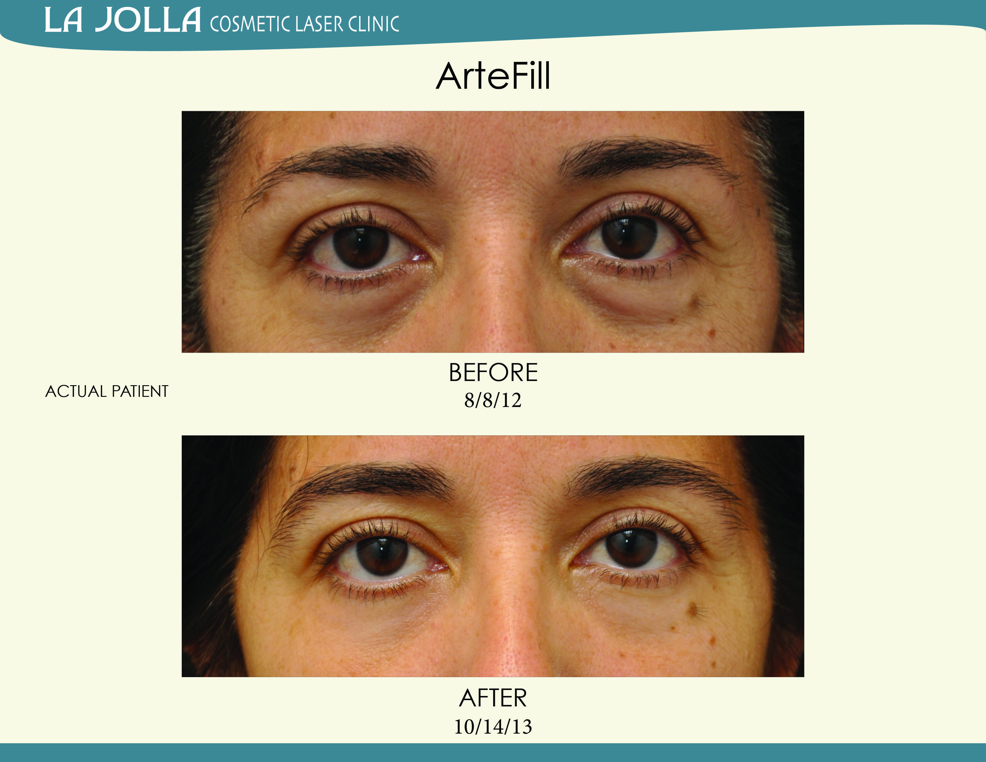 Patient Treated With Artefill At La Jolla Cosmetic Laser Clinic Cosmetics Laser Laser Clinics Cosmetics