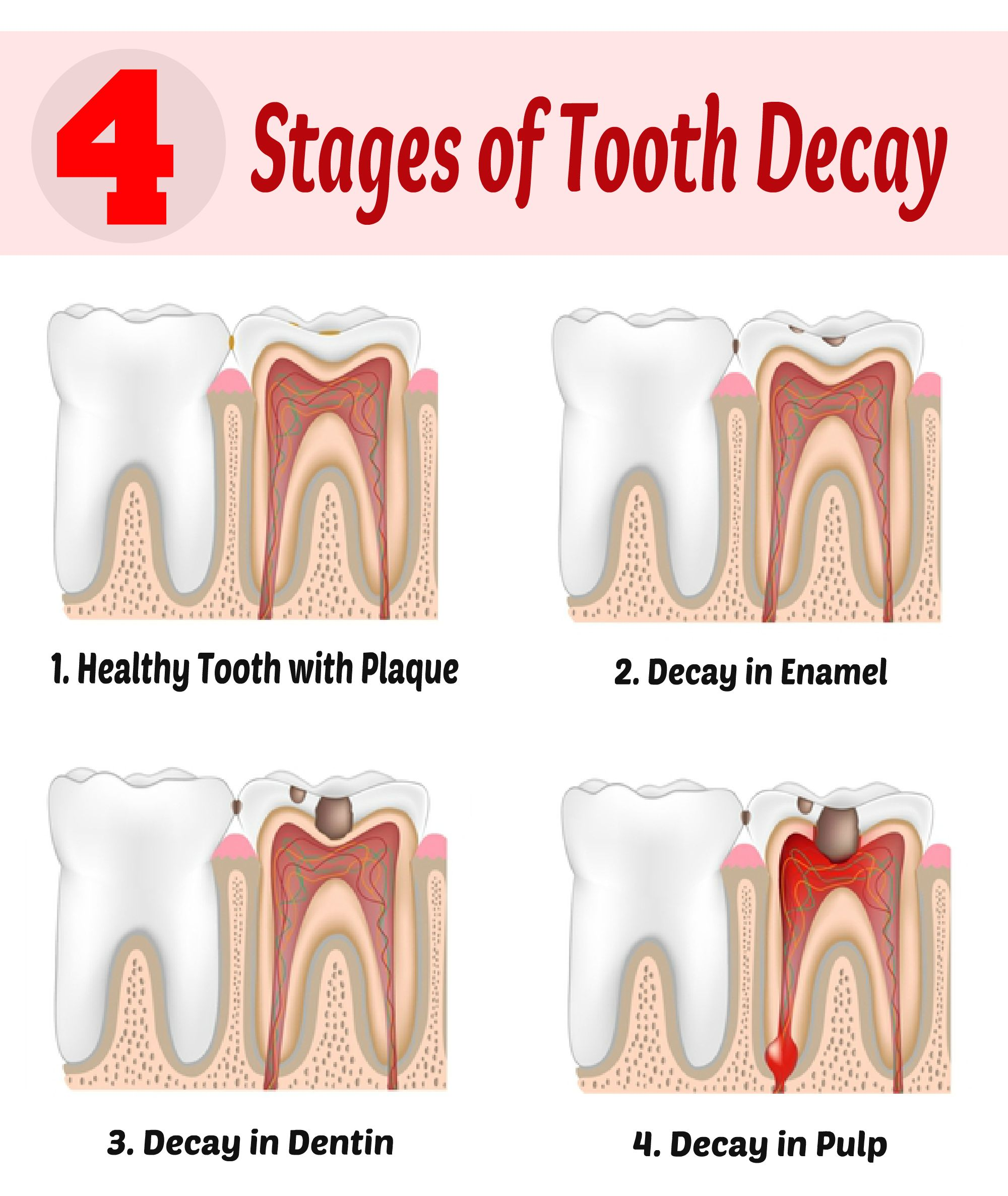 Understand Four Stages Of #Tooth #Decay And How #Cavities