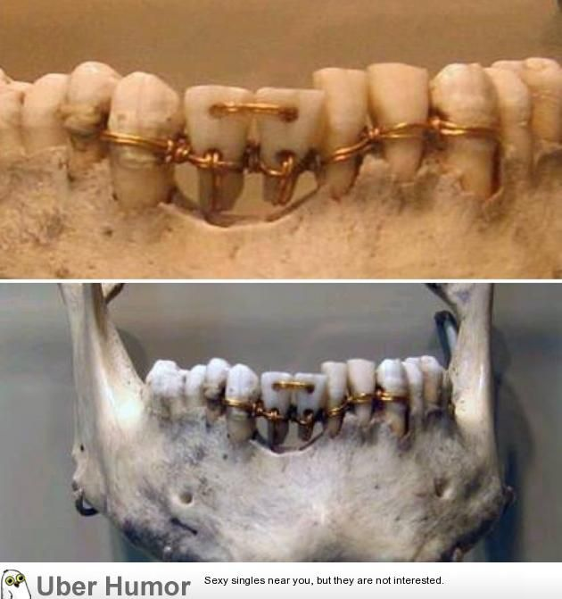 Ancient Egyptian Dental Work From 2000 BC.