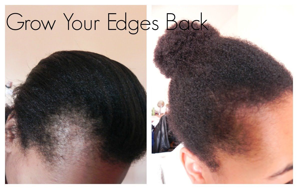 Get Those Edges Back How To Grow Edges And Bald Spots Natural Hair Styles Edges Hair Oil For Hair Loss