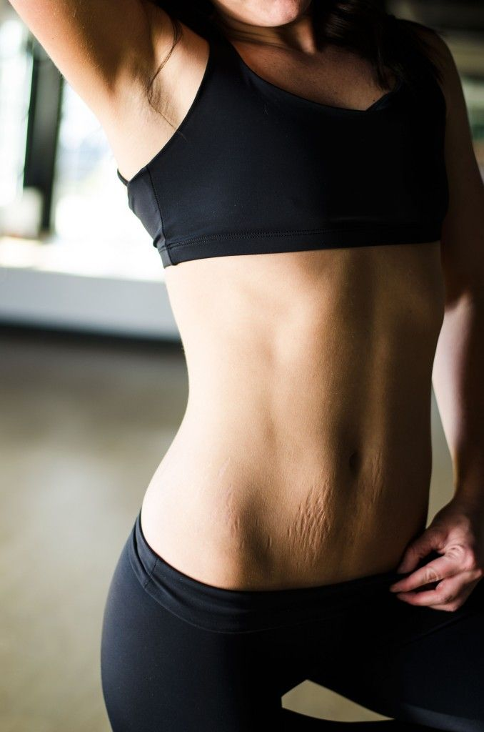 The Stripped Project By Jordan Fitness Mom Body Fitness Inspiration Stretch Marks Collagen is the most abundant protein in the human body and it's found in bones, muscles, tendons and skin. stripped project by jordan fitness