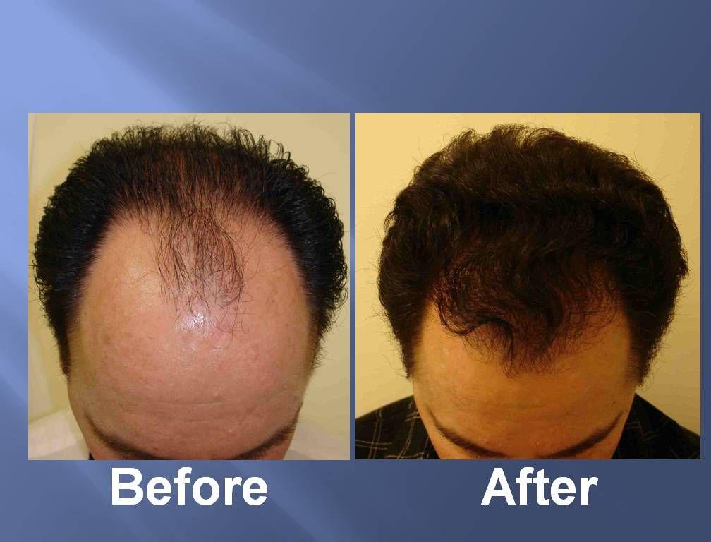Best Hair Transplant Clinic In Abu Dhabi For Men Women Hair Transplant Dubai Hair Loss Natural Remedy Severe Hair Loss Hair Therapy