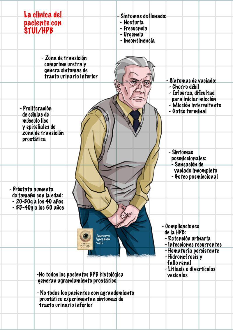 hiperplasia benigna de la próstata