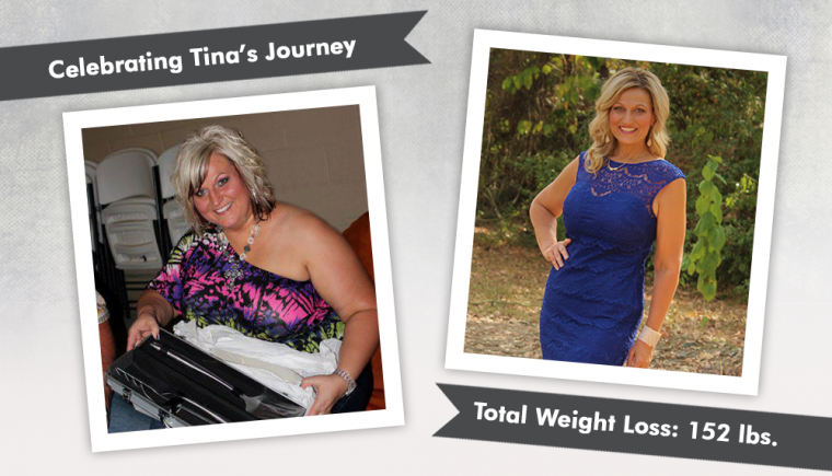 Before After Vsg And Revision To Mini Gastric Bypass With Tina