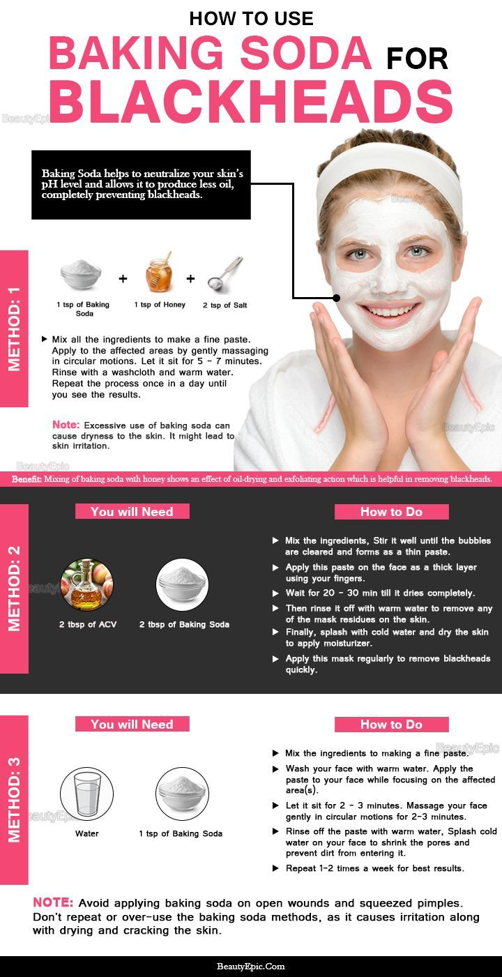 How to Use Baking Soda for Blackheads?