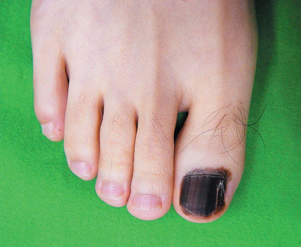 Hutchinson's Nail Sign — NEJM Hutchinson's nail sign is an