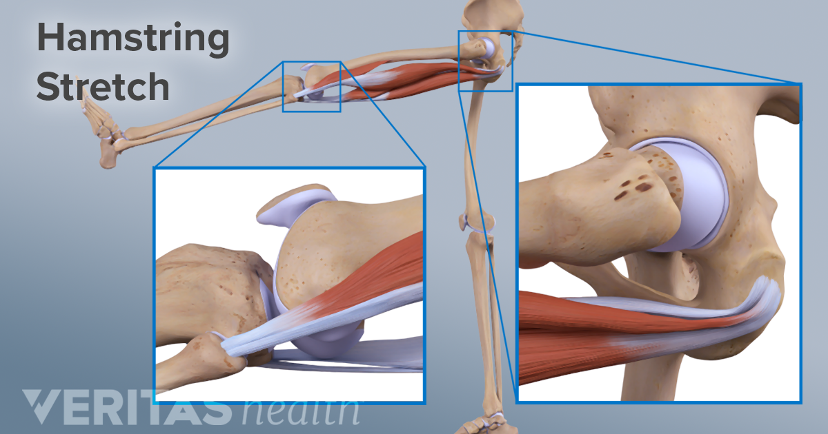 Treatments for Chronic High Hamstring Tendinopathy Leg