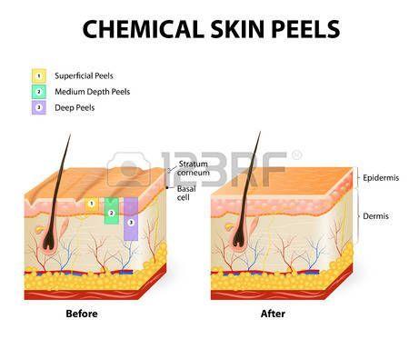 peeling químico o procedimiento chemexfoliation. Capas de piel ...