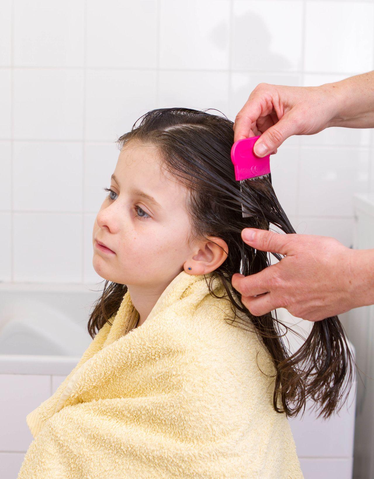 How to apply effective nontoxic head lice treatment pinterest