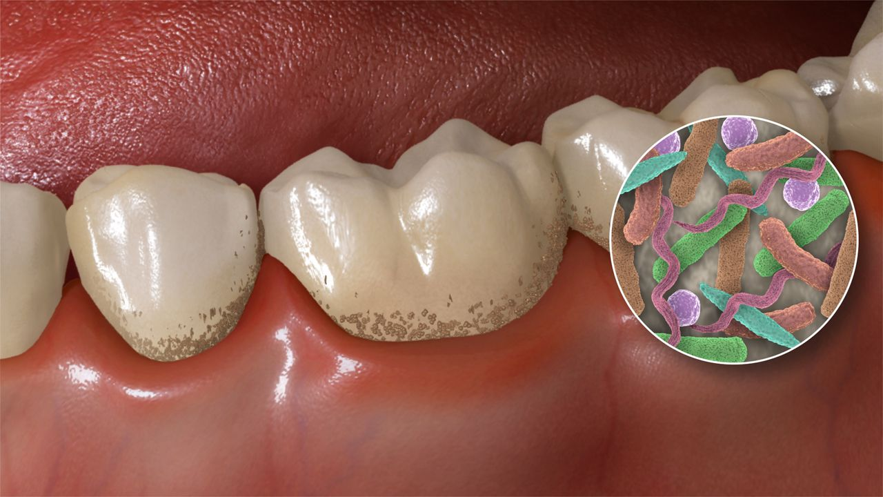 Resultado de imagen para mouth bacterias
