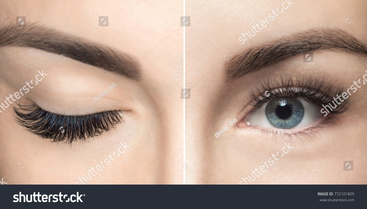 52bf147b526 Eyelash removal procedure close up. Beautiful Woman with long lashes in a  beauty salon. Eyelash extension. close#Beautiful#procedure#Eyelash