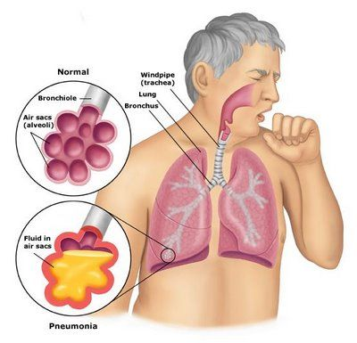 Image result for pneumonia lung