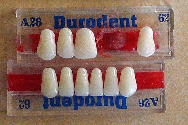 Porcelain dental veneers 3 t pinterest dental veneers and dental porcelain dental veneers 3 solutioingenieria Choice Image