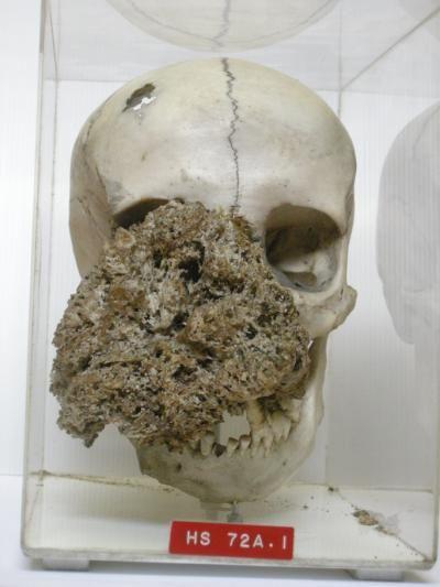 Carbon Dating Human Bones C14 Test Teeth and Antler