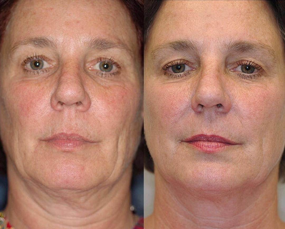 Beauty Problem Turkey Neck So Wirst Du Fiese Falten Am Hals Los Gesicht Pflege Schlaffe Haut Beauty Tipps