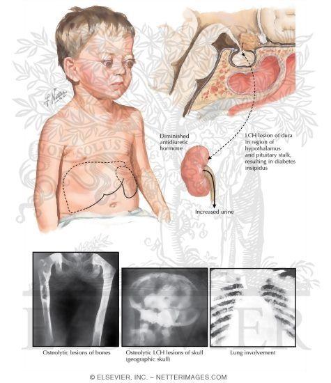 Lymph nodes - not lymphoma - Langerhans cell histiocytosis