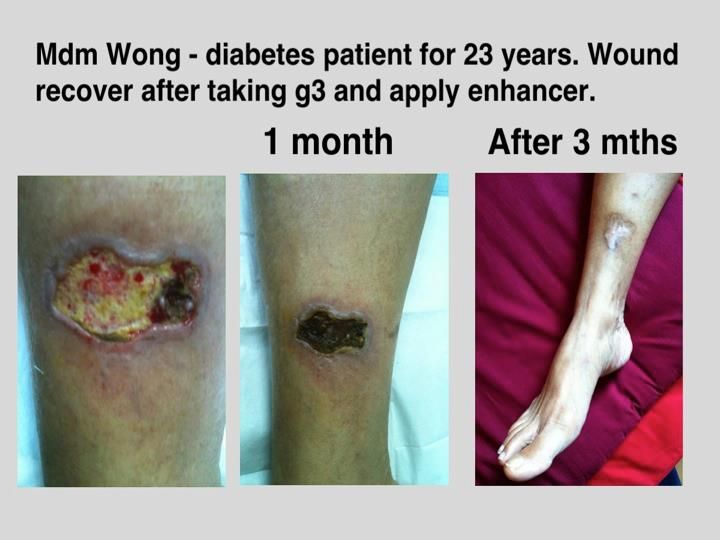 Helps in wound recovery for diabetic patient  | Enhancer