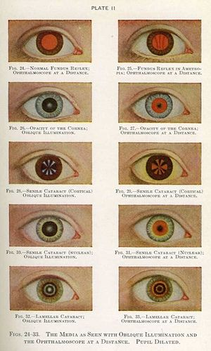 Manual of the Diseases of the Eye for Students and General