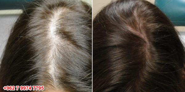 تجربتي مع تقنية حقن البلازما للشعر Hair Styles Hair Plasma Injections