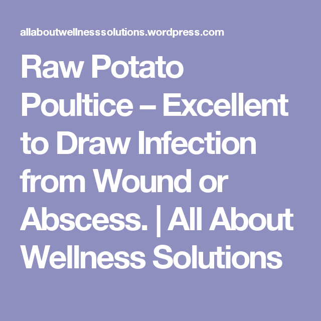 Raw Potato Poultice – Excellent to Draw Infection from Wound or