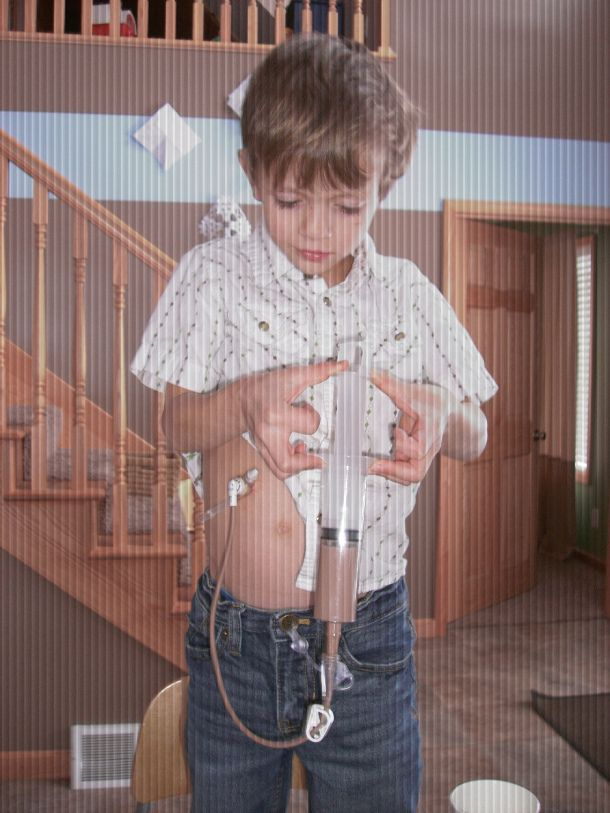Shared stories: children with G Tubes. | SHARED STORIES ...
