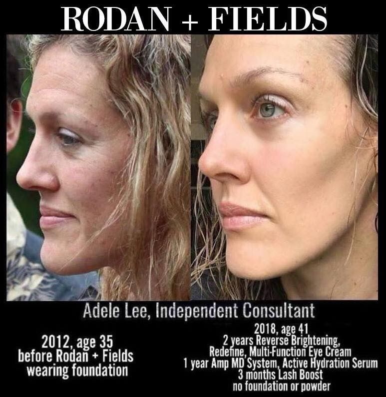 Just L K At Adele S Stunning Results This Is Why Rodan Fields Is The 1 Skincare Brand In North America And The Fastest Gr Rodan And Fields Skin Skin Care