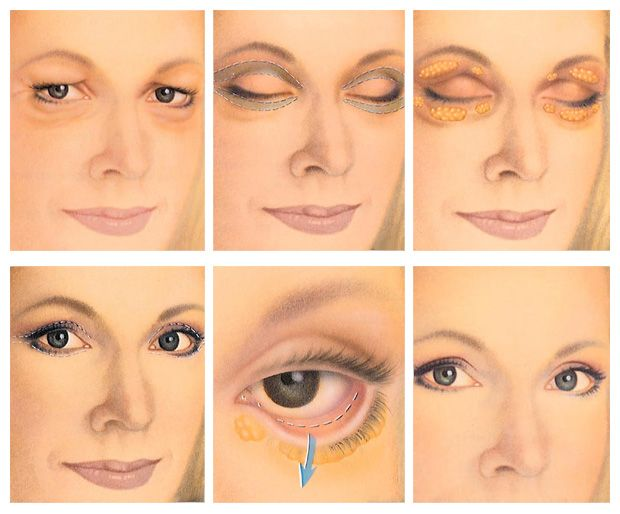 What are some cosmetic surgery options for eye bags?