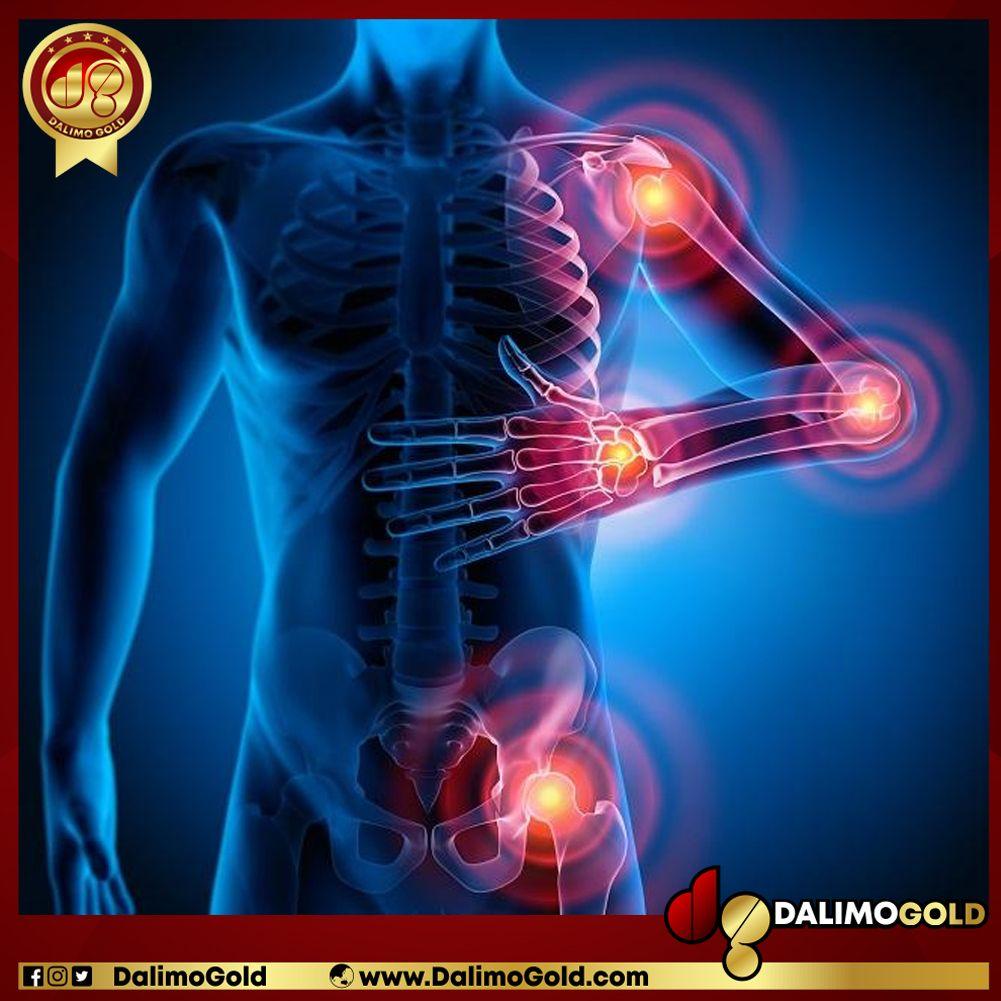 Penyebab lutut sakit dan kaku