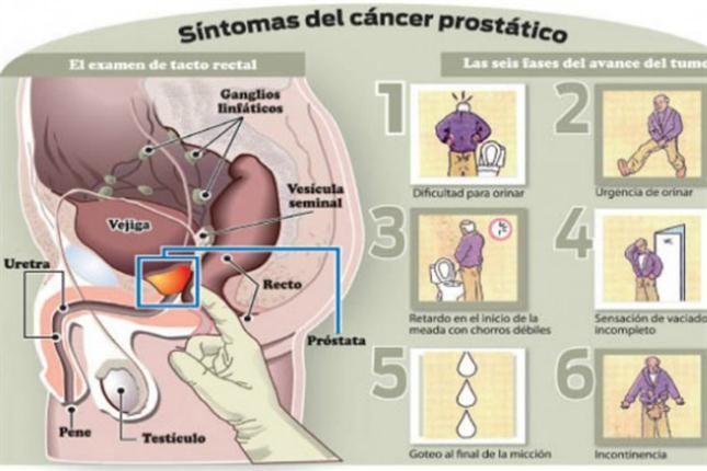 examen para cancer de prostata