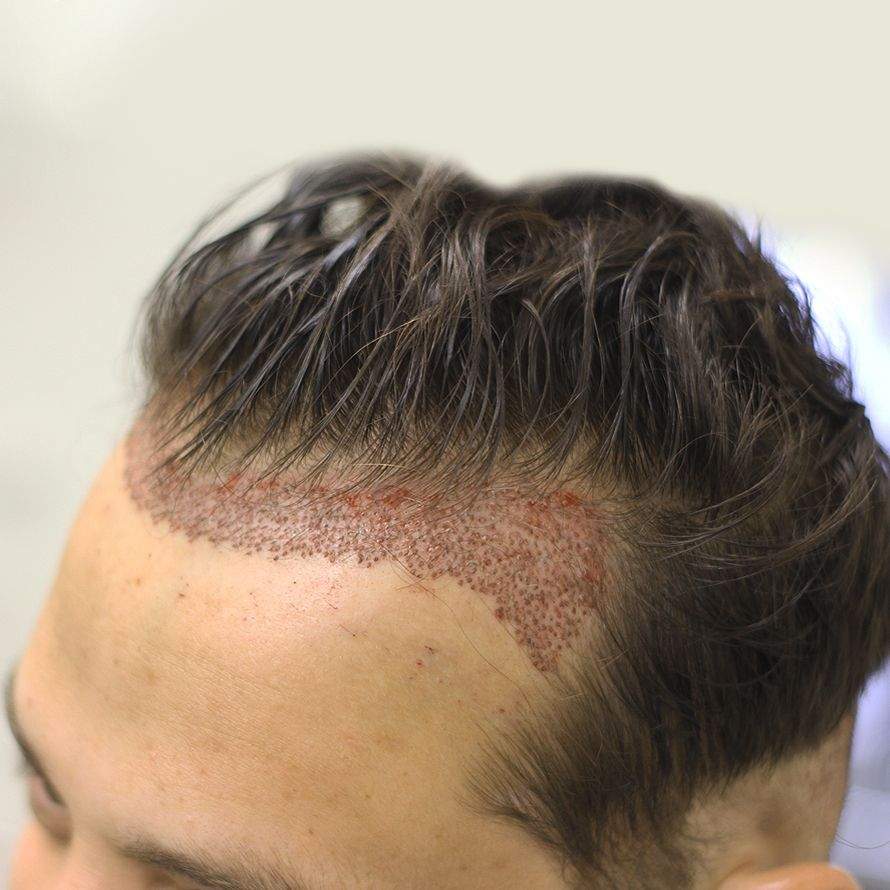 Before And After FUE Hair Transplant Mens Hair Styles - Custom vinyl decal application fluidhow to make decal application fluidhair loss surgery