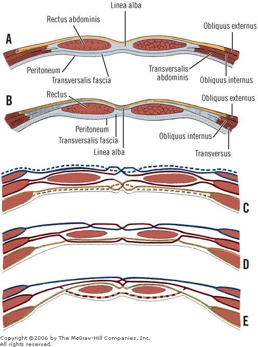 Print chapter 9 abdominal wall and hernias anatomy pinterest abdominal wall and hernias ccuart Image collections