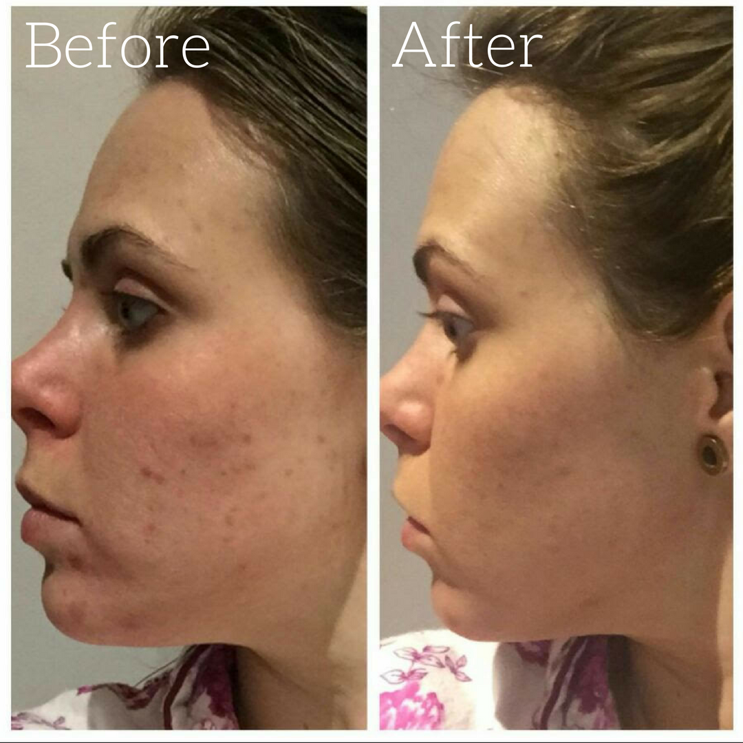 Thanks To Hannah, Aged 26, For Sharing The Results Of Her Tria Beauty Acne Clearing  Blue Light Treatment After Just Two Weeks. #triabeauty #skin #acne # ... Great Pictures