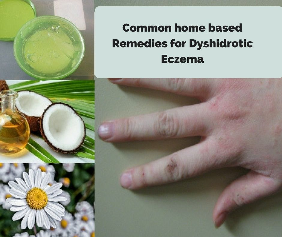 Dyshidrotic Eczema Home Remedies Causes Symptoms Toenail